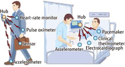 MBAN technologies